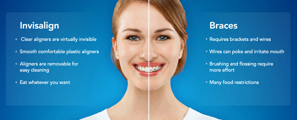 Invisalign Clear Braces Aptos