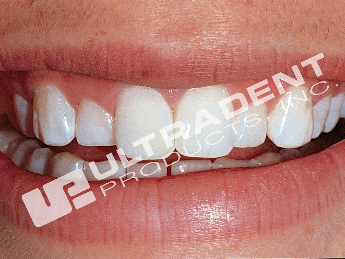 opalescence tooth whitening system how to use