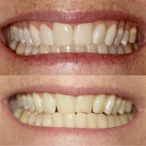 Teeth Whitening Aptos