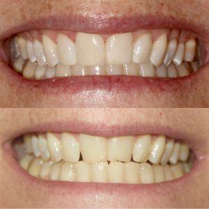 Teeth Whitening Aptos