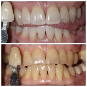 In-office Teeth Whitening treatment with Zoom!