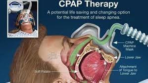 CPAP Aptos - Sleep Apnea