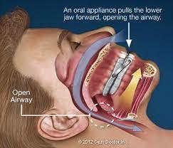 Oral Appliance Aptos - Sleep Apnea